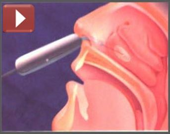 metode uvulopalatofaringoplastika